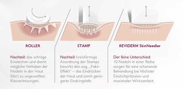 SkinNeedler Methode